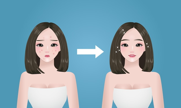 Acne problem, women face before and after concept