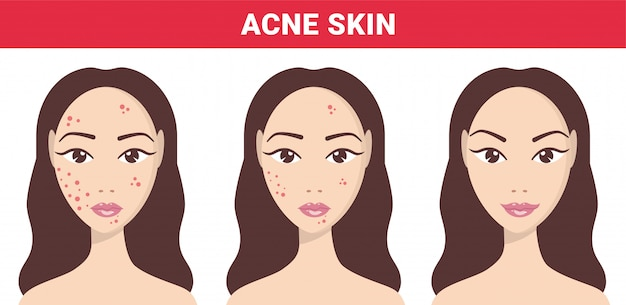 Acne, skin problems, stages of acne. acne skin of woman to clear steps