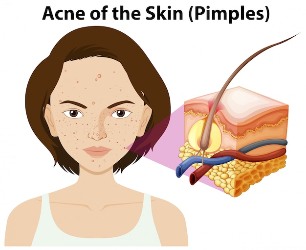 Acne of the skin on a woman