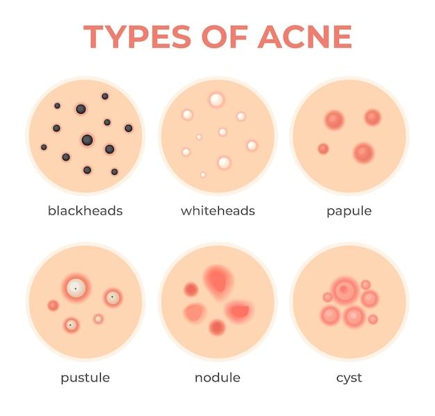 여드름 유형. 피부 감염 문제, 여드름 등급 및 유형 낭종, 화이트헤드, 블랙헤드, 결절 및 낭성. 진피 기공 질환 벡터 세트입니다. 안면 염증, 치료 및 건강 관리