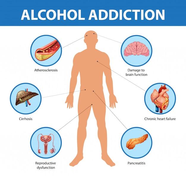 Dipendenza da alcol o infografica di informazioni sull'alcolismo