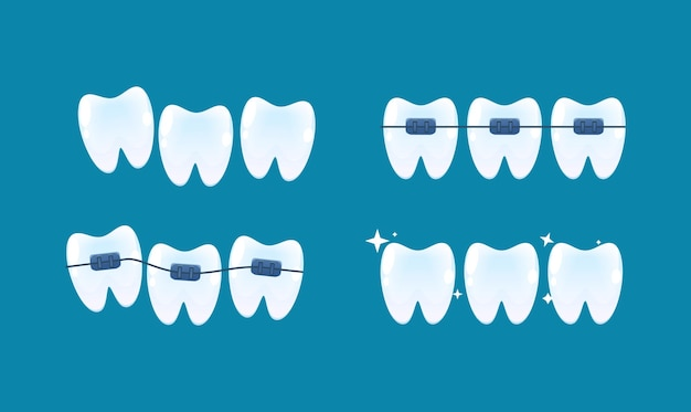 Выравнивание зубов и исправление прикуса с помощью брекет-системы. векторный мультяшный стиль.