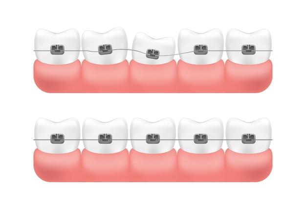 歯とブレースシステムの位置合わせ。 Premiumベクター
