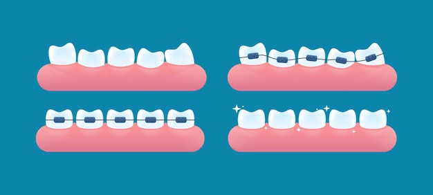Alignment of teeth and bite correction with the help of braces system