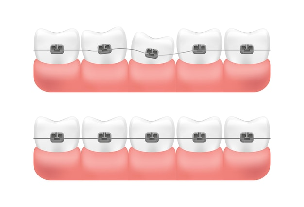 Alignment of teeth with braces system.