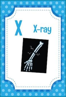 X- 레 이용 문자 x가있는 알파벳 플래시 카드