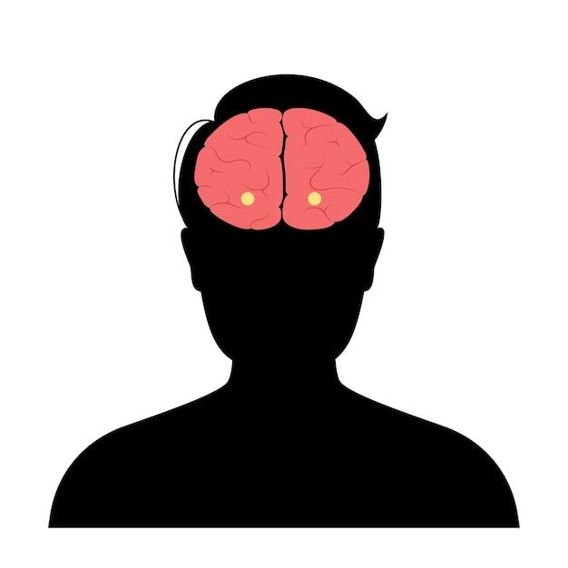 Миндалевидное тело и лимбическая система. анатомия человеческого мозга. кора головного мозга и векторная иллюстрация головного мозга