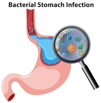 Anatomy bacterial stomach infection