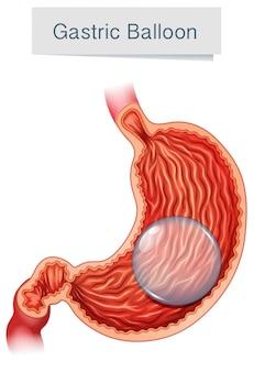 Анатомический медицинский векторный желудочный шар