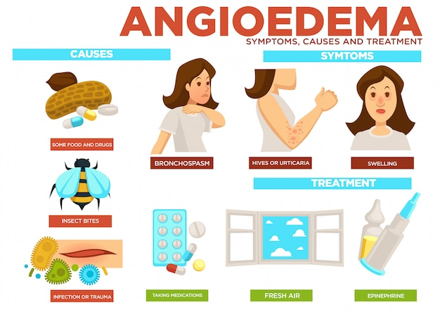 Angioedema symptom, causes and treatment of disease