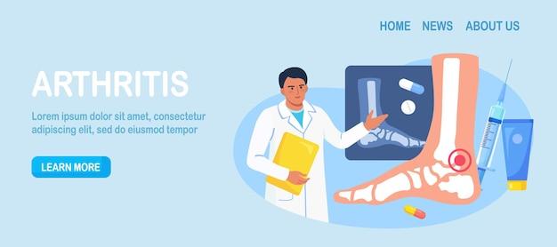 Артрит голеностопного сустава. врач исследует рентгеновские снимки суставов. остеоартроз, ревматоидный артрит, ревматизм. врач лечит боль в суставах пациента