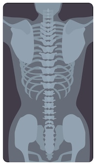 Anterior radiograph of human rib cage and pelvis. x-ray picture or radiographic image of bones and joints, front view. medical diagnostics. monochrome vector illustration in flat cartoon style