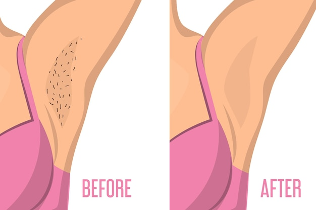Armpit depilation before and after.