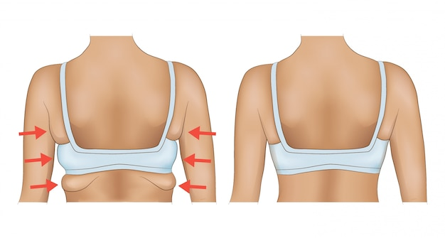 Armpits fat before and after diet or surgery