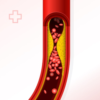 Artery section with cholesterol buildup - cholesterol and thrombosis