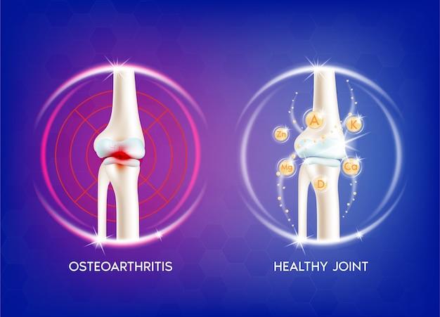 関節炎の膝関節。人間の骨の解剖学。スケルトンx線スキャンの概念とビタミン療法。