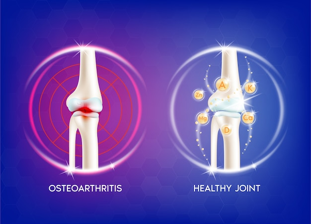 Arthritis knee joint. human bone anatomy. skeleton x ray scan concept and vitamin therapy.