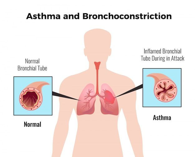 Астма-атака медицинская образовательная карта с изображением плоского и нормального воспаленного бронха