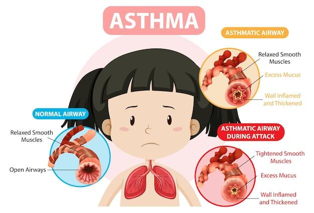 Diagramma dell'asma con vie aeree normali e vie aeree asmatiche