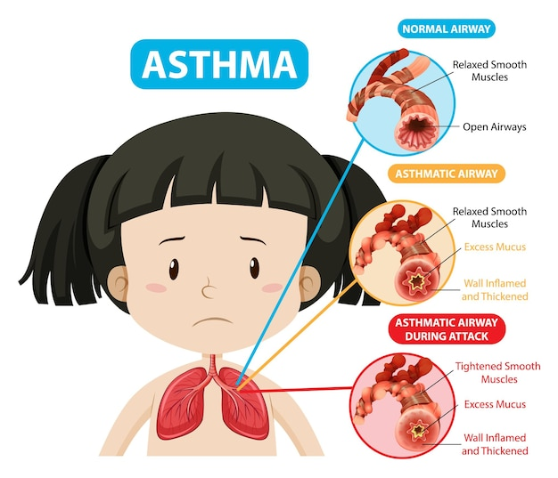 Asthma diagram with normal airway and asthmatic airway