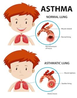 正常な肺と喘息の肺を伴う喘息の図
