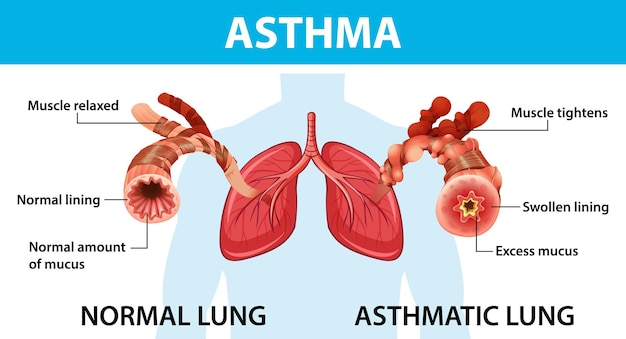 Asthma diagram with normal lung and asthmatic lung