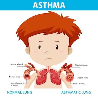 Diagramma dell'asma con polmone normale e polmone asmatico