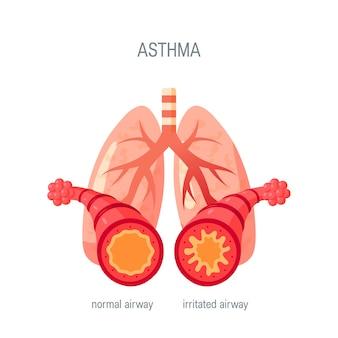 喘息疾患のコンセプトです。医療アトラス、記事、インフォグラフィックなどのフラットスタイルで。