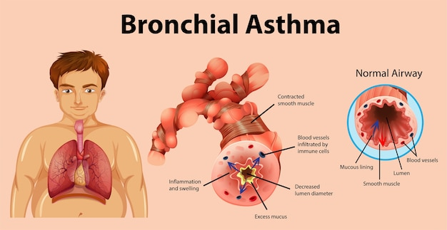 Asthma inflamed bronchial tube