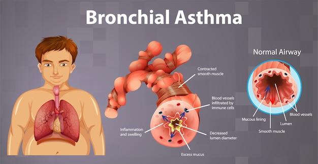 Воспаление бронха при астме