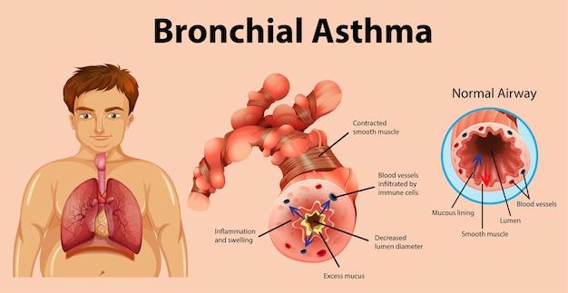 Tubo bronchiale infiammato dall'asma