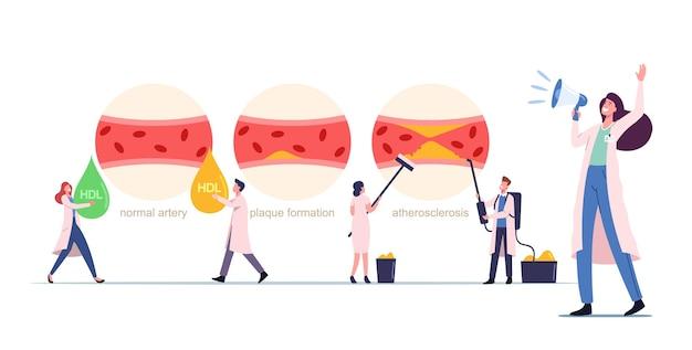 인간의 혈액 동맥 정상, 플라크 형성 및 콜레스테롤로 차단된 혈관, 건강 관리를 나타내는 작은 메딕 캐릭터가 있는 죽상동맥경화증 인포그래픽. 만화 사람들 벡터 일러스트 레이 션