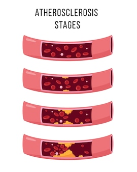Atherosclerosis stages isolated on white