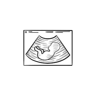 초음파 손으로 그린 개요 낙서 아이콘에 아기 실루엣. 흰색 배경에 격리된 인쇄, 웹, 모바일 및 인포그래픽을 위한 벡터 스케치 그림에 아기가 있는 임신 초음파.