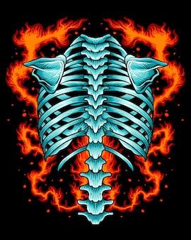 Back bone skeleton on fire