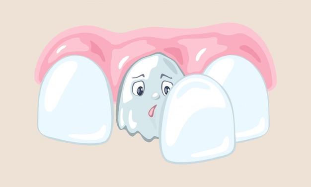 Bad tooth is among healthy teeth.