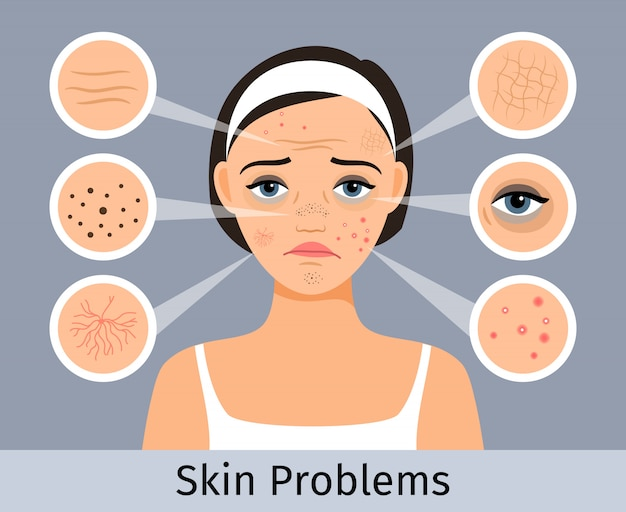 Beauty and freshness of the woman face vector illustration. girl with skin spots, pimples and wrinkles