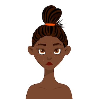 Beauty woman with acne on the face. cartoon style. illustration.