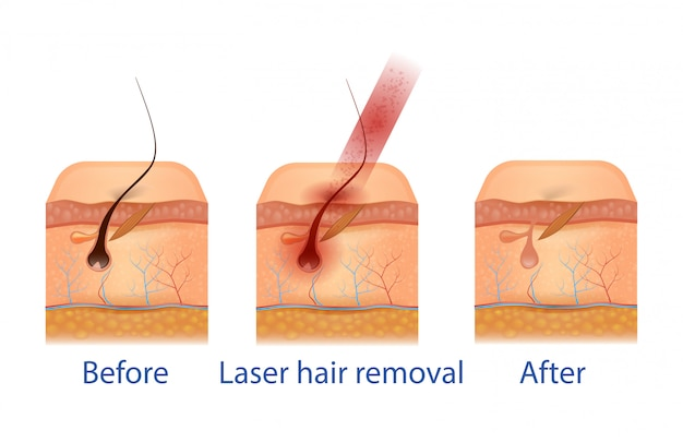Before and after hair removal procedure.