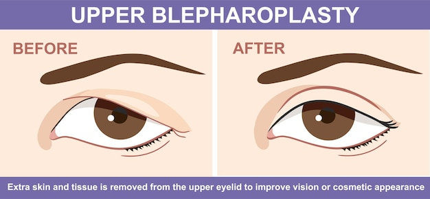 Blepharoplasty of eyelid before and after