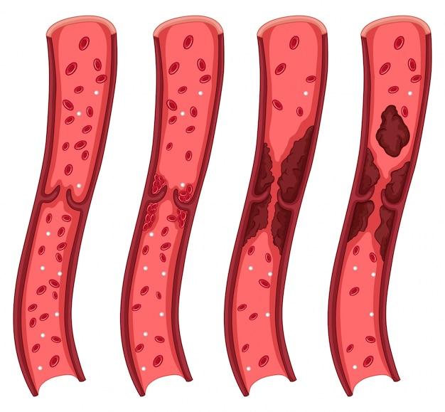 Blood clot diagram on white