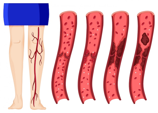 Blood clot in human legs