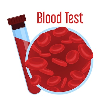 Анализ крови. красная жидкость в медицинской стеклянной колбе.