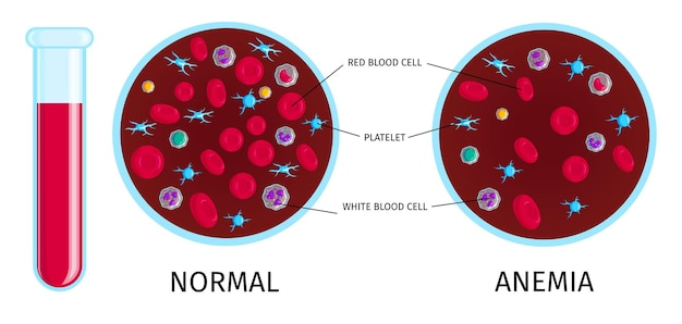 Blood test with anemia infographic