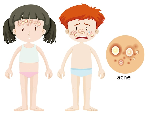Boy and girl with acne problem
