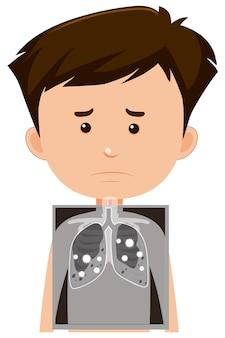 Мальчик с рентген легких