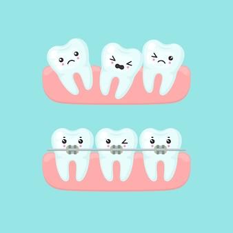 Концепция стоматологии выравнивания брекетов. милый мультфильм зубы изолированных иллюстрация