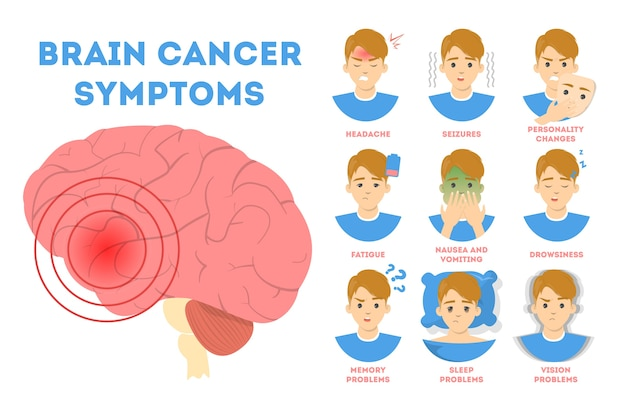 Brain cancer symptoms. nausea and vision