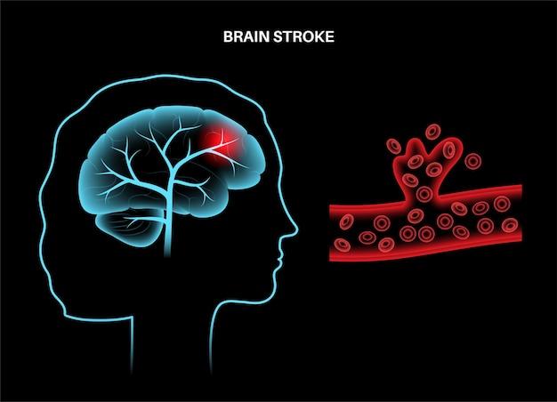 뇌졸증 출혈