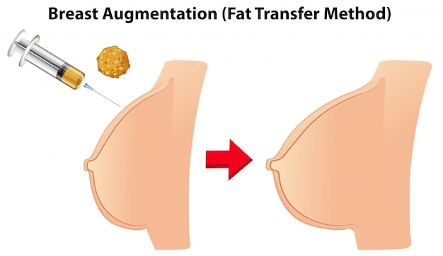 Breast augmentation fat transfer method
